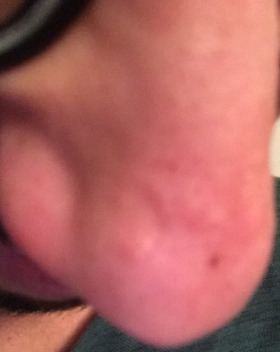 I have had these bumps on nose and I am sure they are acne