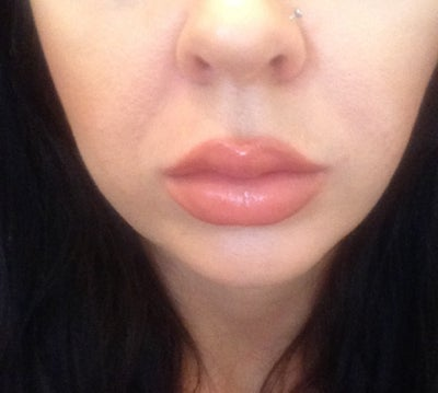 Could my big cheeks be causing nasolabial lines? (pics)