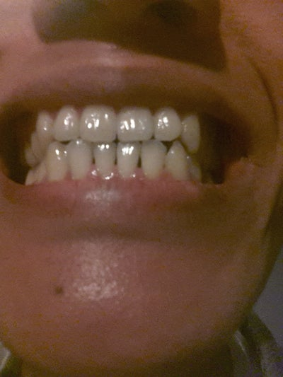 Do Gums Grow Back To Fill The Spaces (black Triangles ...