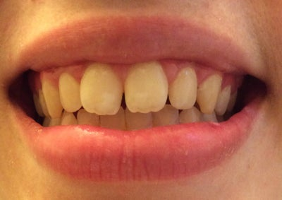 How long would it take with braces or Invisalign to fix my ...