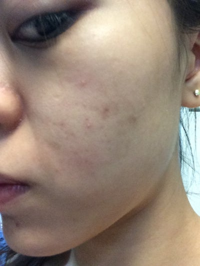 how to get rid of tiny bumps on cheeks