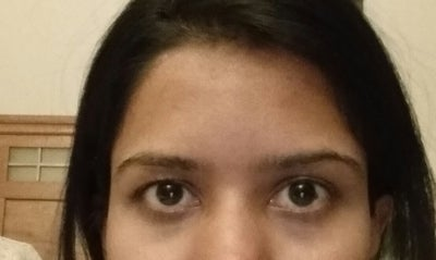 Uneven Eyes Possibly Eyebrows Are As Well Heavy Eyelids