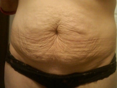Remove Excess Skin And Fat Inplace Of Tummy Tuck Doctor