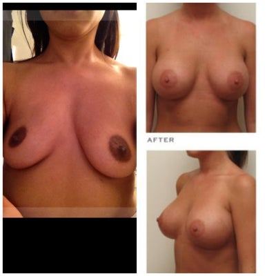 asymetrical breast correction