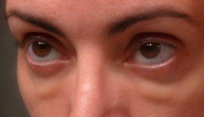 Красные глаза после бани почему