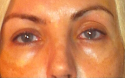 how to fix extra fold in eyelid