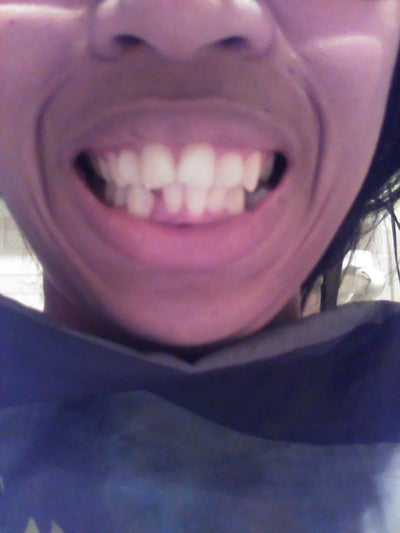 How long do you think it would take to straighten my teeth ...