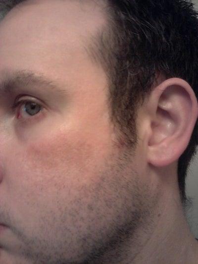 Hemosiderin Stain Or Hyperpigmentation Photo Doctor