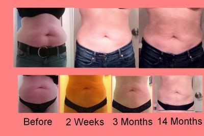 slim lipo  abdomen flanks    boston slim lipo review realself