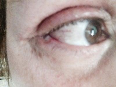 mild steroid eye drops otc