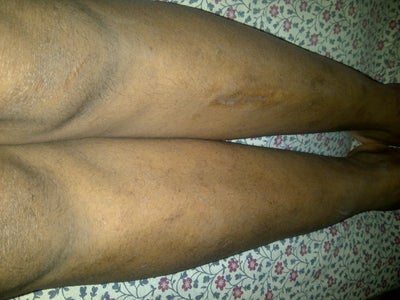how to get rid of spot scars on legs