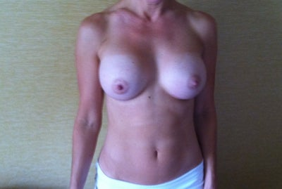 Milfs with big ass natural tits