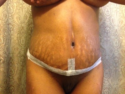can prednisone cause stretch marks