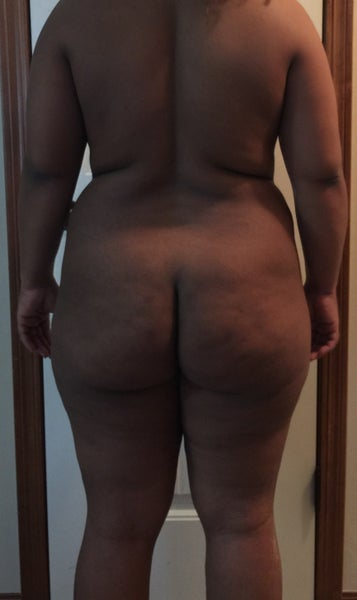 A Bigger Butt Through Squats or Brazilian Butt Lift