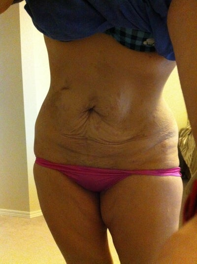 Hookup someone who had gastric bypass