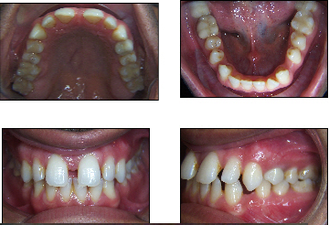 Fixed or Essix Retainer for Gapped Teeth? (photo) Dentist ...
