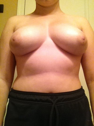 Breast reduction covered by cigna insurance