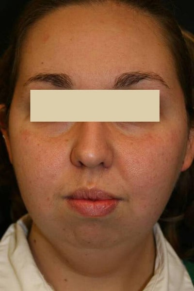 Facial Plastic Surgery Rubinstein