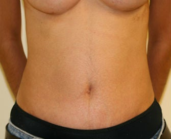Abdominoplasty Revision Photo From Steve Laverson Md San