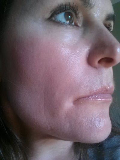 43 Years Old Some Sun Damage And Occasional Breakouts