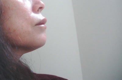 how to get rid of juvederm bumps