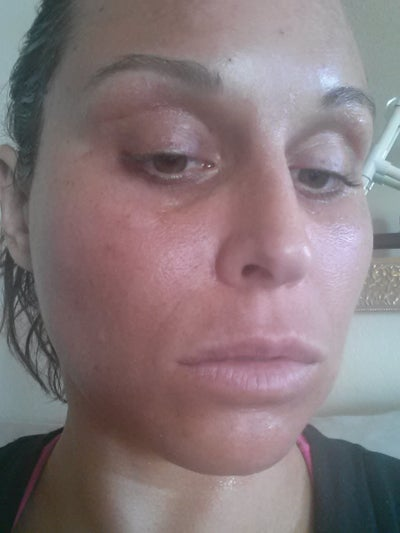 Sun Damaged Lips: 31 Years Old, Tons Of Sun Damage. Fraxel Laser And