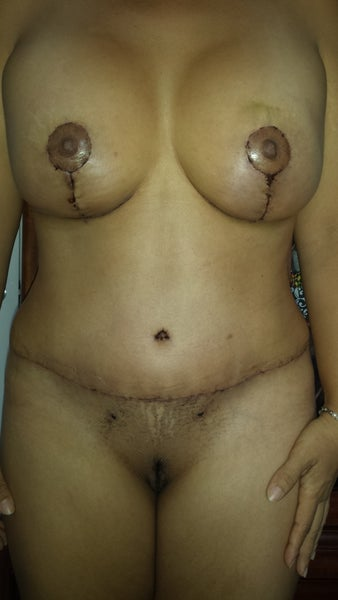 Pulsating breast normal is under left