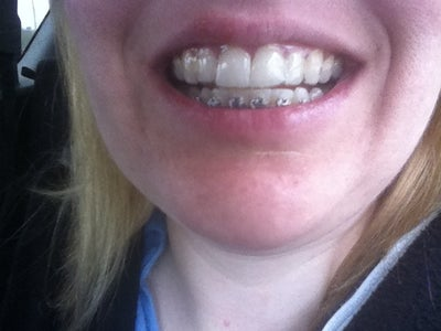 Metal Braces Worked Better and Faster for Me Than ...