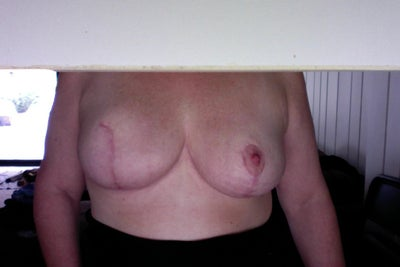 Are Benign Lumps Typical After a Breast Reduction/lift