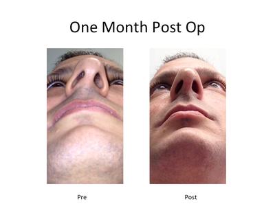 3.5 Month Post Op...Septoplasty/Rhinoplasty/Turbinate ...