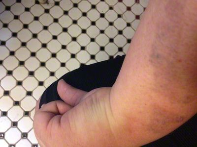 Hypo Hyperpigmentation After Tattoo Laser Removal Sessions