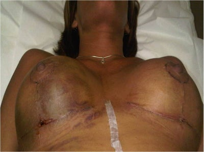 Hematoma After Breast Augmentation Surgery