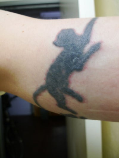 Picosure tattoo removal sacramento ca tattoo removal for How long does it take to get a tattoo removed