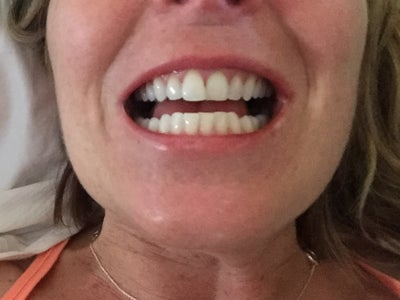 How long would I need to wear Invisalign braces? (photos ...