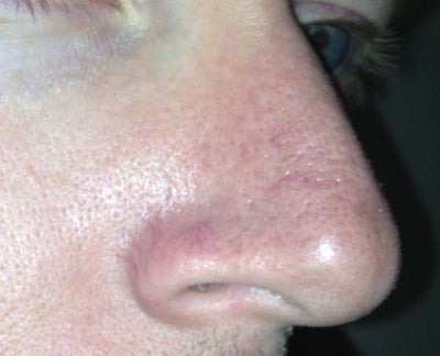 How to reduce / repair large pores on my nose? (photos ...