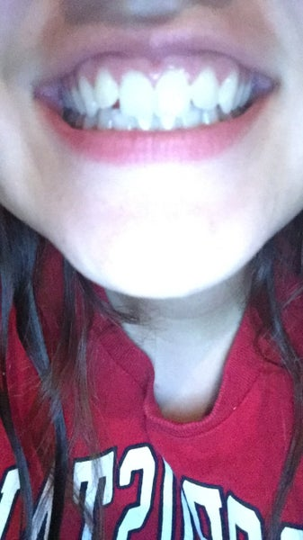 I Have A Small Overbite Two Of My Teeth Stick Out One