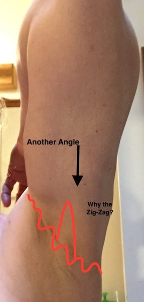 Arm Lift Incisions : Why is a zig zag incision used in minimal arm
