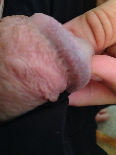 Swollen Vein On Penis 92