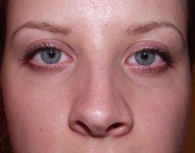 Would Alarplasty Help Fix my Nose Asymmetry? (photo ...