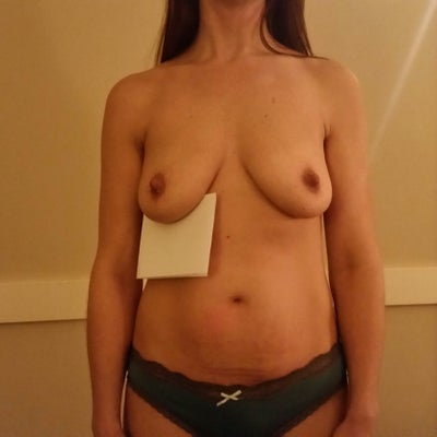 Ms and breast implants