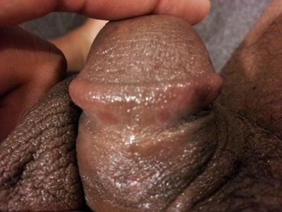 pealing penis skin off