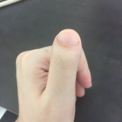 how to make clubbed thumbs look normal
