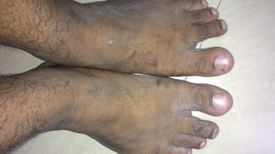 how to get rid of skin dryness