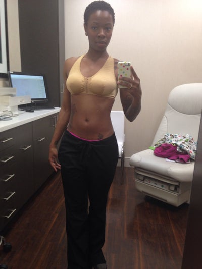 Breast Implants Over Muscle