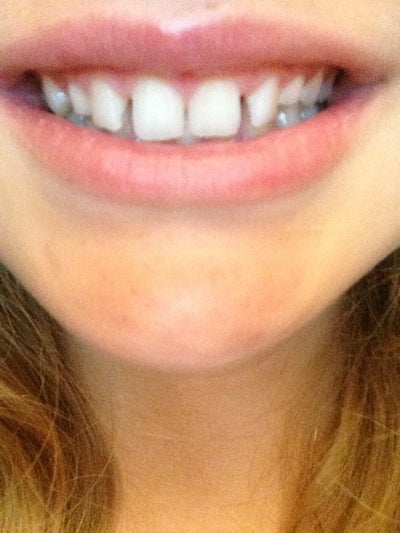 How Long Will It Take to Close These Gaps in my Teeth ...