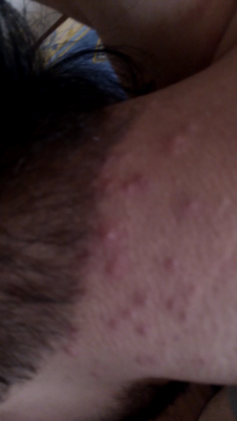 Waxing Neck Hair: Got Acne Pimple Type Blisters On Neck After Laser Hair