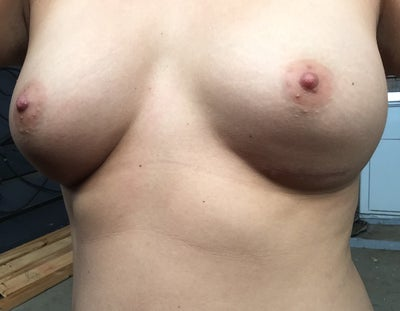 Breast Augmentation - Rand Cosmetic Surgery
