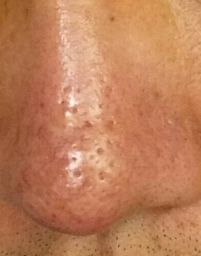 how to get rid of open pores on nose