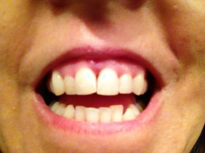 What Is Best Fix For Black Triangles Between Teeth? (photo ...