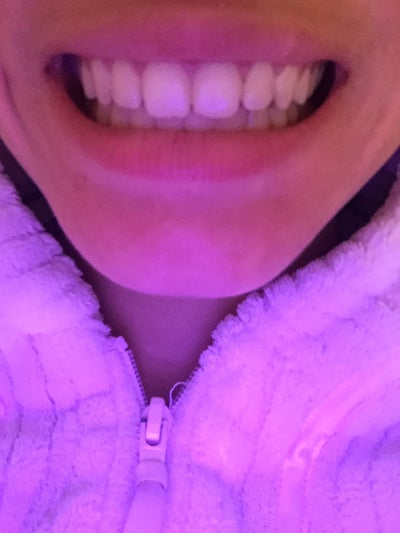 how to fix bite without braces